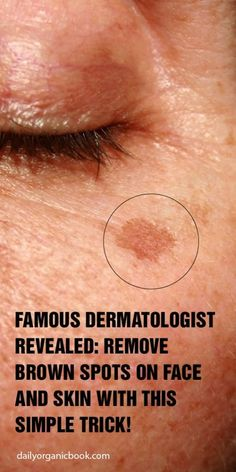 Famous Dermatologist Revealed: Remove Brown Spots On Face And Skin With This Simple Trick! - House for Health Daily Beauty Skin, Health And Beauty, How To Get Rid, How To Remove, Brown Spots On Skin, Facial Brown Spots, Age Spots On Face, Natural Remedies For Allergies, Skin Care Routine For 20s