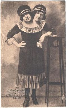 The Salon Sisters: Ella  Elvira conjoined twin real picture postcard (c. 1880s) #Freakshow #Circus #Bizarre