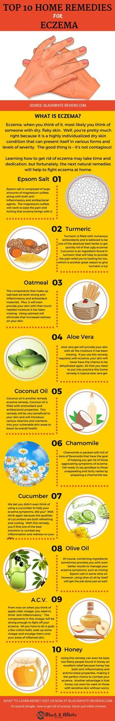 Eczema remedies. How to get rid of eczema using home and natural treatment.