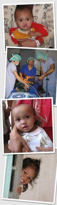Aktion Lächeln in Kambodscha Bitte schenken Sie Kindern in Kambodscha ihr Lächeln zurück! Ihre Weihnachtsspende hilft, Kinder zu operieren und ihnen die Chance auf ein neues Leben zu schenken.
