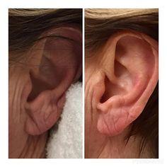 Just finished an earlobe rejuvenation using Juvederm Ultra. Pictures taken immediately before & after.  #antiaging #juvederm #Cosmeticenhancement #infographic #dermalfillers #neurotoxins #Botox #dysport #botoxfiller #brotox #medspa #skincare #goodbyewrinkles # beforeafter #wrinkles #samsara_Sterling