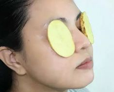 7 Quick Natural Cures For Bags Under Eyes - How To Cure Bags Under Eyes Naturall. - Under Eyes Remedies - Yorgo Health Guru, Health Class, Health Trends, Natural Treatments, Natural Cures, Eye Stye Remedies, Womens Health Magazine, Hair And Makeup Tips, Cellulite
