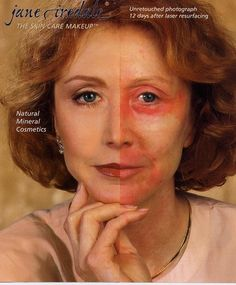 Jane Iredale Make-up. The founder Jane Iredale before and after showing the amazing coverage of Jane Iredale mineral makeup, the skincare makeup recommended by doctors and skin care professionals. We love providing  professional color matching and makeup consultations with Jane Iredale. We stock the whole beautiful line at The Estheticians Professional Skin and Body Care.