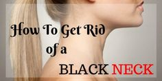 How To Get Rid of a black neck naturally at home