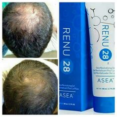Hair restoration with Renu 28