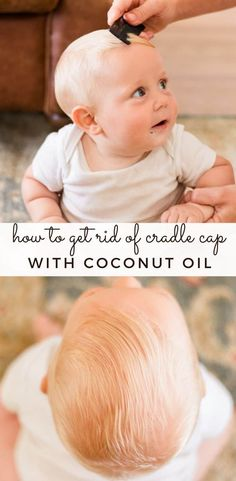 Cradle cap is very common in babies and can be hard to get rid of. Find out how you can use coconut oil to get rid of cradle cap for your baby. Natural Shampoo, Natural Skin Care, Cradle Cap Remedies, Mother To Baby, Ayurvedic Home Remedies, Natural Remedies, Essential Oil Diffuser Blends, Moisturizer For Dry Skin, Facial Care