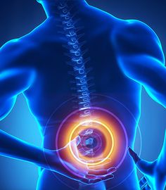 Spinal Stenosis - Google Search