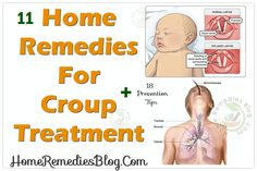 11 Home Remedies For Croup Treatment & Prevention Tips