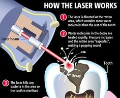 Spaceline Dental Studio is provide painless dental treatment in Mumbai by using Laser Dentistry treatment. Our Erbium laser dental treatment help to remove decay without dental drills and at the same time removes bacteria and disinfects the whole cavity. Laser Dentistry, Cosmetic Dentistry, Dental Facts, Dental Humor, Dental Surgery, Dental Implants, Nose Surgery, Dental Health, Dental Care