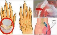 Ένα απλό και εύκολο τέχνασμα για την εξάλειψη της Αρθρίτιδας, της Οσφυαλγίας και της Ισχιαλγίας το οποίο λειτουργεί καλύτερα από τα φάρμακα!