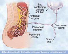 Information regarding peritoneal dialysis.