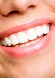 61 Best Smile Structure San Antonio Images On Pinterest Braces