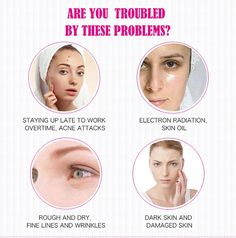Moisturizing Collagen And Snail Whitening Face Cream Remove Pimples Acne - Buy Whitening Cream,Face Cream,Snail Cream Product on Alibaba.com Underarm Whitening Cream, Whitening Cream For Face, Whitening Face, Acne Scar Cream, Nano Titanium, How To Remove Pimples, Shrink Pores, Oils For Skin, Skin Brightening