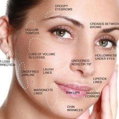 Derma fillers are used to correct all these facial areas! Book your appointment to see our team to address your area of concern