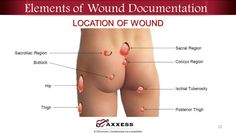 Wound Care Review Best Practice