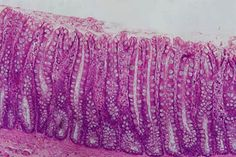 Epithelium Histology - Simple columnar epithelium