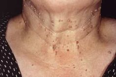 Pictures of Bumps on Skin: Cysts, Skin Tags, Lumps, and More Skin Bumps, Skin Tag, Skin Care Remedies, Skin Problems, Beauty Makeup, Tags, Freeze, Electric
