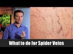 The Best Remedy for Spider Veins (and Chronic Venous Insufficiency) - YouTube