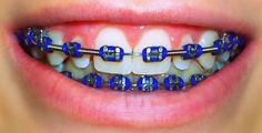 Clear braces are a popular alternative to metal braces. Origin Orthodontics provide clear braces teeth alignment treatment to patients in London. Dark Blue Braces, Dental Braces, Teeth Braces, Braces Bands, Braces Tips, Miami, Braces Retainer, Cute Braces Colors, Dental Health