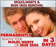 Moles, Warts  Skin Tags Removal is a digital program that shows you how to remove Moles, Warts  Skin Tags safely, naturally and permanently in the privacy of your own home. Warts on the face are small, rough and raised bumps on the face. They are both quite common and harmless. The only problem usually relates to aesthetic reasons. It is a fact that no one likes to have these horrible creatures on ones face.
