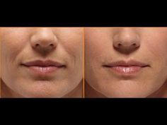 Facial Aerobics Exercises Rocks! How To Get Rid Of Frown Lines And Forehead Wrinkles - YouTube