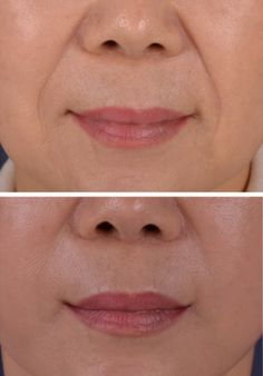 There are times when nasolabial folds get better. It is when there is excess fat exists next to lip lines. In such case, if the fat is removed, the lip lines get improved. Also, if the bulging area due to the previously injected foreign substances is removed, nasolabial folds may get thinner. Face and neck lift should be performed to gain such effects. Thinner Face, Nasolabial Folds, Aesthetic Clinic, Neck Lift, How To Line Lips, Plastic Surgery, Gain, Anti Aging, Spa