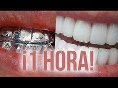 Blanqueamiento dental: ¡BLANQUEA TUS DIENTES Con papel aluminio en 1 hora! - YouTube