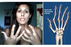 Check out this testimonial of a beautiful young woman who suffered needlessly from arthritis pain in this video titled