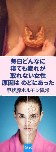 毎日、どんなに寝ても疲れが取れない女性。原因はのどにあった。疲れやすく眠い?甲状腺ホルモン異常が引き起こす症状。#甲状腺 #ホルモン #病気 #症状 #眠い #疲れ Medicinal Plants, Body Care, Health And Beauty, Health Care, Medicine, Health Fitness, Japanese, Blog, Japanese Language
