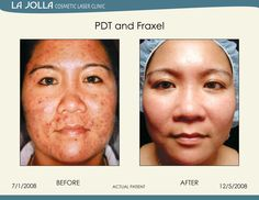 Patient treated with PDT and Fraxel at La Jolla Cosmetic Laser Clinic.