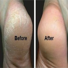 Causes, Symptoms & Home Remedies For Cracked Heels