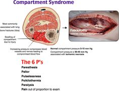 Compartment Syndrome.  MC- tibia.  Tx- Fasciotomy.  Radius and ulna are 2nd MC…