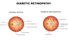 Diabetic Retinopathy Treatment in Sharjah, Diabetic retinopathy is a condition that occurs in people who have diabetes. It causes progressive damage to the retina, the light-sensitive lining at the back of the eye. Diabetic retinopathy is a serious s High Blood Sugar Causes, Blood Sugar Diet, Diabetic Eye Disease, How To Control Sugar, Low Glycemic Index Foods, Diabetic Retinopathy, Low Blood Sugar Levels, Medication List