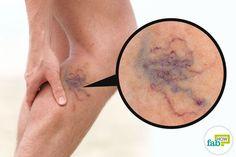 get rid of visible veins