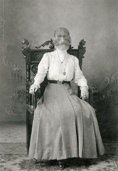 Alice Elizabeth Doherty  ~ hypertrichosis
