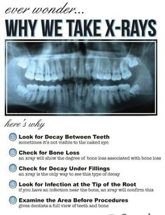 Why are x-rays important? #BozemanSmiles #BozemanMontana http://tmiky.com/pinterest