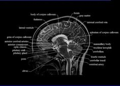 free MRI brain cross sectional anatomy