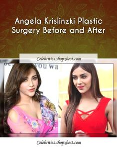 Angela Krislinzki was born on 21 June 1992 in Mumbai, Maharashtra, India. She had accomplished a Masters Degree in Psychology. She was skilled to behave by Neeraj Kabi and Mukesh Chhabra. Prior to performing in Celebrity Surgery, Psychology Degree, Size Zero, Light Eyes, Tv Commercials, Beauty Hacks, Beauty Ideas, Plastic Surgery, 21 June