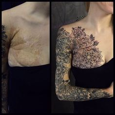 Tattoo artists are incredibly talented and creative people who can often relish the extra challenge of working with a scar or a birthmark to create something truly unique. Birthmark Tattoo, Scar Tattoo, Tattoo Cover, Tattoos To Cover Scars, Flower Tattoo Back, Flower Tattoo Shoulder, Incredible Tattoos, Beautiful Tattoos, Anatomy Sketch