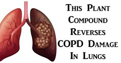 This Plant Compound Reverses COPD Damage In Lungs, According To Research - ORGANIC AND HEALTHY