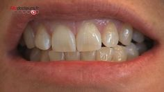 Après les bars à ongles ou à sourcils, les bars à sourire se développent de plus…