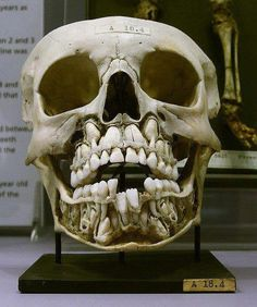 tonihime:      This is a real photo of a real skull. It belonged to a child whose adult teeth had not come out yet. This is where those teeth are in early childhood. It creeps me the Hell out.    *____* I can't stop staring at it….