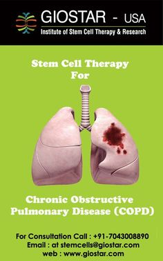#Stem #Cell #Treatment for #COPD  #COPD can be extended as Chronic Obstructive Pulmonary Disease, is a term commonly used for group of lung problems including but not limited to emphysema, chronic bronchitis and refractory asthma. The disease is mainly characterized by severe breathing difficulty and coughing, which is mistakenly concluded as the normal part of aging.  Know more visit: http://www.giostar.com/Therapy/copd/  OR Email: stemcells@giostar.com