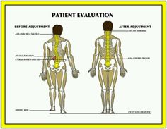 Postural abnormalities, pain, gait, & MORE can be removed with the chiropractic adjustment!