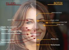 voluma facial sculpting - Google Search