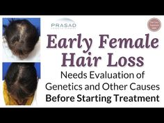 Treating Difficult Female Pattern Hair Loss Successfully in Over 99% of Patients -  How To Stop Hair Loss And Regrow It The Natural Way! CLICK HERE! #hair #hairloss #hairlosswomen #hairtreatment More on Hair Regeneration:  For more about Dr. Prasad's training and background, please go to: A 22-year-old lady is experiencing hair loss, and states that many doctors she... - #HairLoss