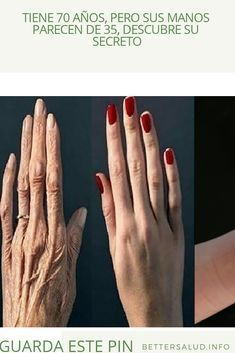 The hands are the parts of the body that age faster than any other part. This is due to the fact that the skin in the area of the hands Beauty Soap, Hair Beauty, Nail Growth, Les Rides, Hand Care, Skin Food, How To Squeeze Lemons, Tips Belleza, Skin Treatments