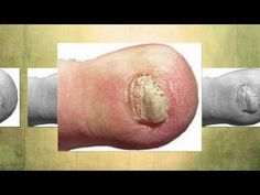 http://www.NastyToenailFungus.com - Go to my website to learn how to use an all natural home remedy for toenail fungus that can completely clear your nails of fungal infections in a matter of weeks