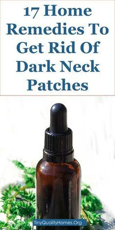 17 home remedies to get rid of dark neck patches - Go Tips Dark Spots On Neck, Home Remedies, Natural Remedies, Health Remedies, Herbal Remedies, Acanthosis Nigricans, Diabetes, Natural Hair Mask, How To Grow Eyebrows