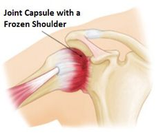 Frozen shoulder treatment aims to reduce pain and restriction. Find out all about frozen shoulder causes and symptoms and the best ways to speed up recovery
